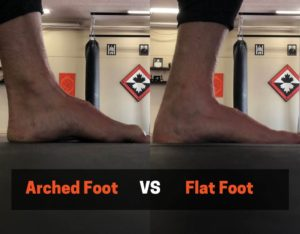 Flat feet might cause shin splints while squatting