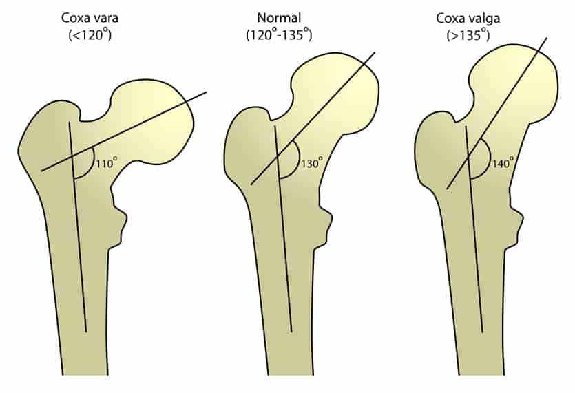 having a shallow hip socket means that the way the pelvis, hip socket, and femur connect has a lower angle than what's considered normal