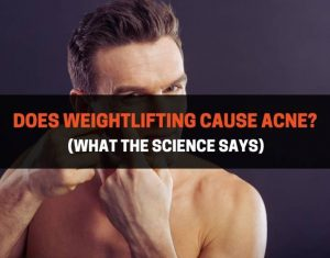 Does Weightlifting Cause Acne