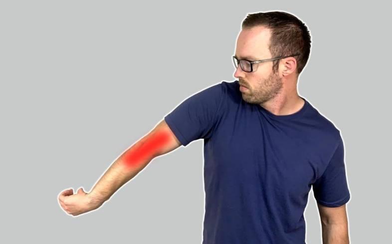 lateral epicondylitis, often referred to as tennis elbow