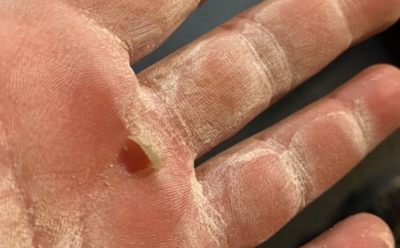 calluses form on the hands when a person repetitively grips an object