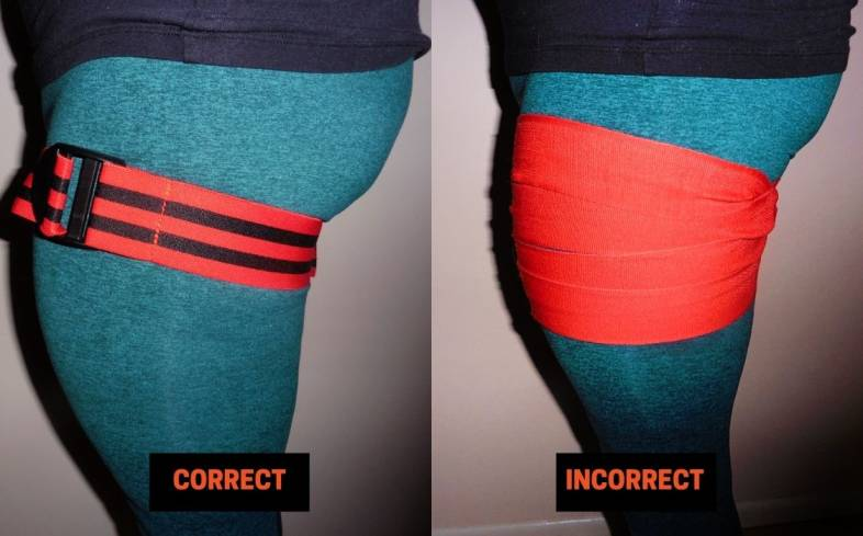 when training the calves, BFR bands should only be placed at the top of the thighs